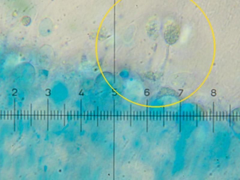 Hygrocybe_colemanniana_Basidi_1000x19.jpg