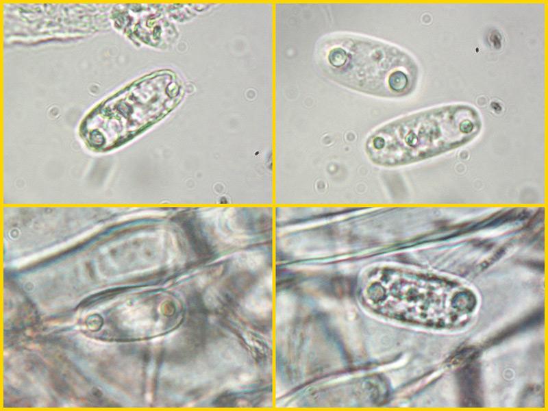 Sarcoscypha-coccinea-06-9-Spore-1000x-H2O.jpg