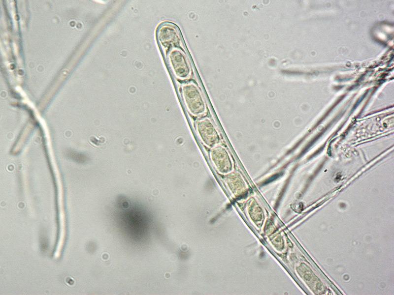 Sarcoscypha-coccinea-03-Spore-600x-Melzer.jpg