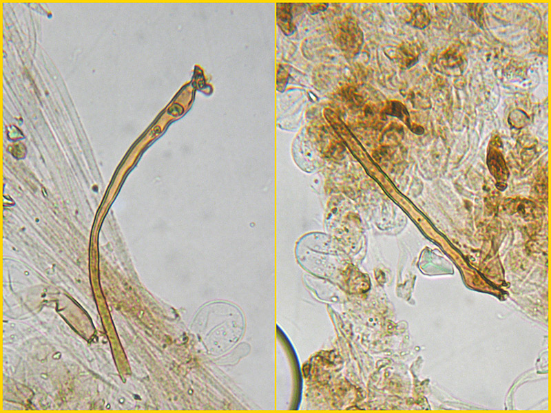 Coprinus-auricomus-39-40-Cuticola-setae-Acqua.jpg