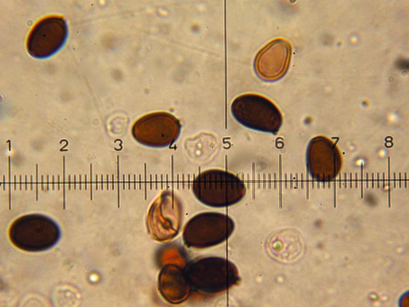 Coprinus-auricomus-19-Spore.jpg