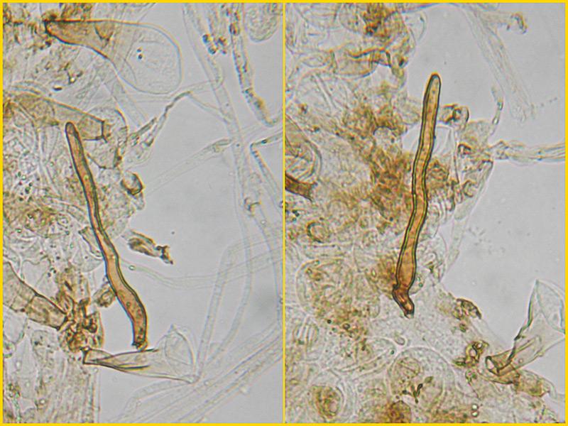 Coprinus-auricomus-38-42-Cuticola-setae-Acqua.jpg
