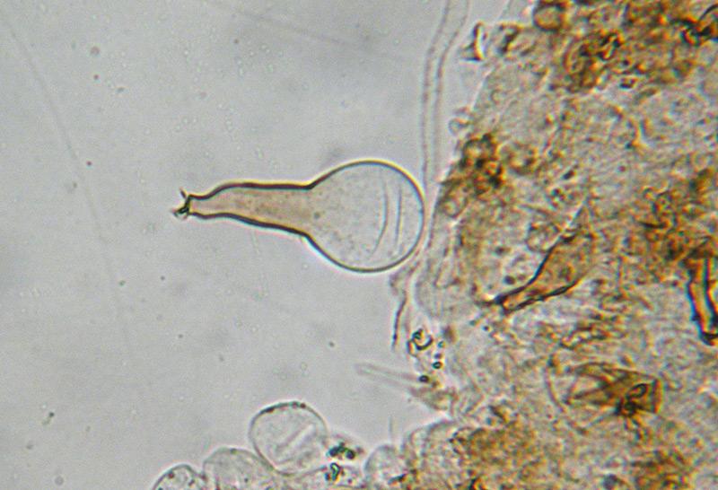 Coprinus-auricomus-34-Pileocistidi.jpg