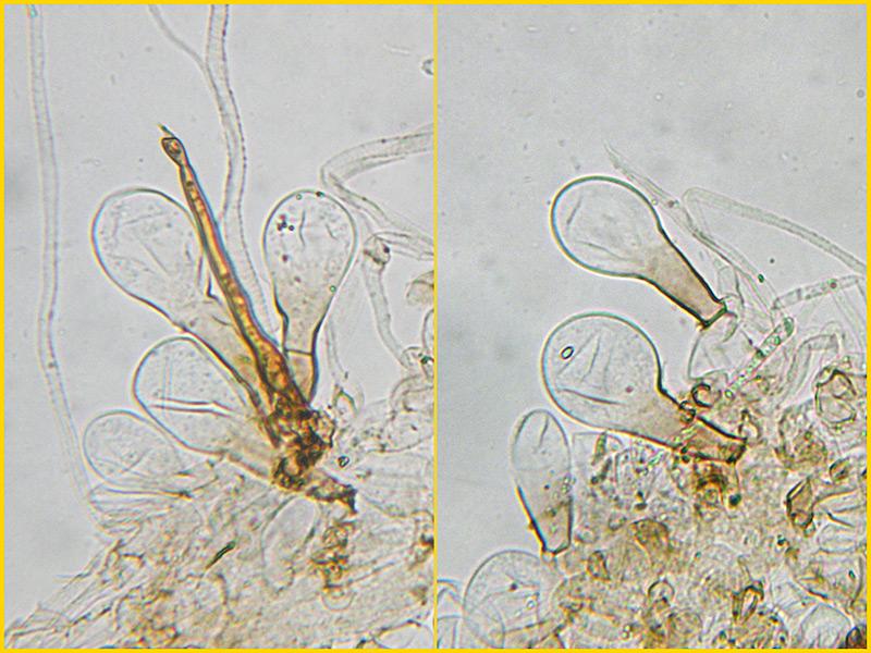 Coprinus-auricomus-26-30-Pileocistidi-Acqua.jpg
