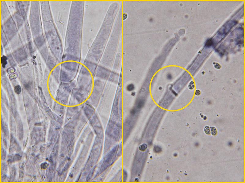 Pluteus-pouzarianus-19-20-Cuticola-GAF.jpg