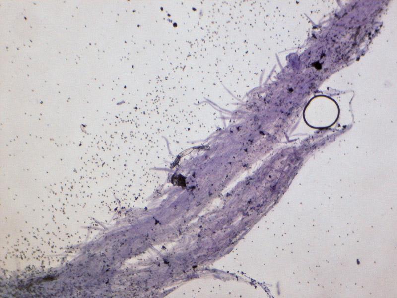 Pluteus-pouzarianus-13-Cuticola-Cutis.jpg