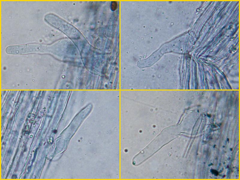 Coprinellus-radians18-9-20-2-Caulocistidi.jpg