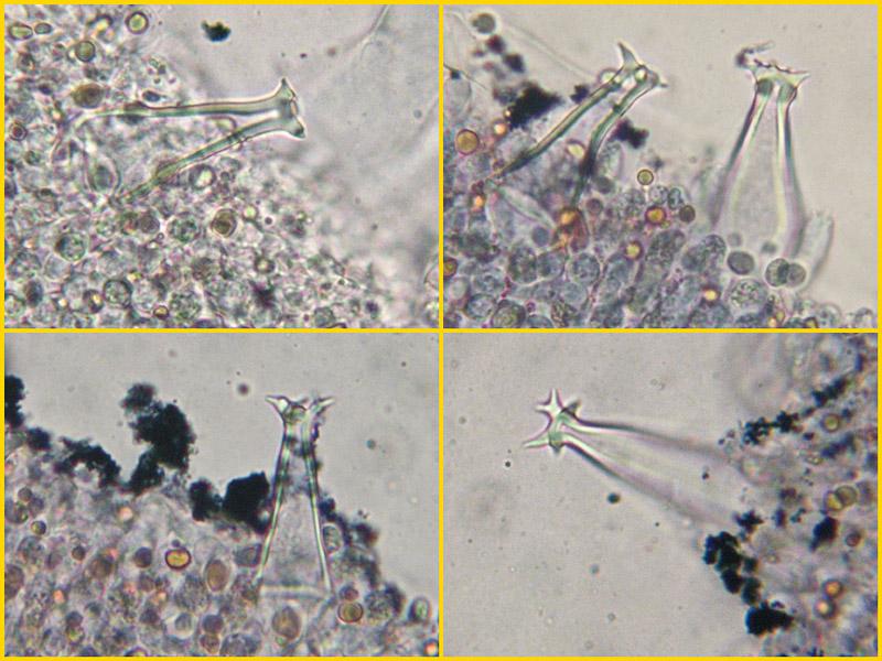 Pluteus-pouzarianus-23-8-9-31-Pleurocistidi.jpg