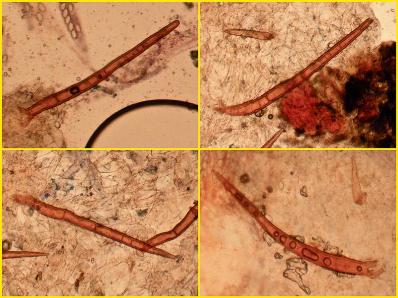 Scutellinia-umbrorum-13-5-7-9.jpg