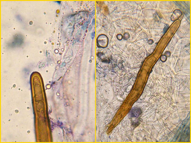 Scutellinia-umbrorum-21-3.jpg