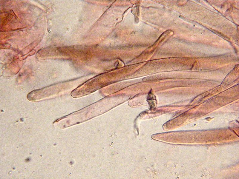 Entoloma-jubatum-87b-Cuticola.jpg