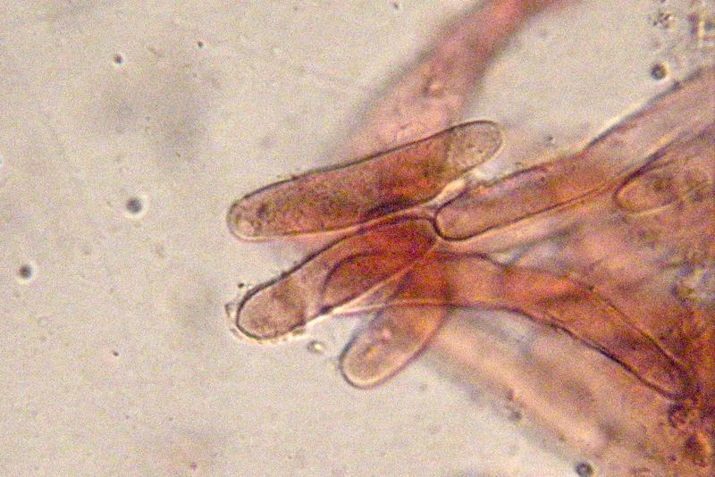 Entoloma-jubatum-88b-Cuticola.jpg