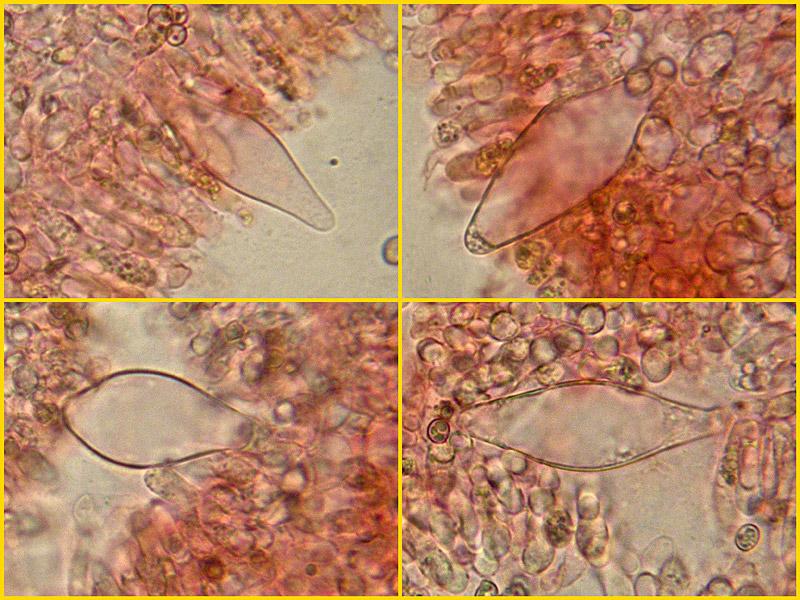 Pluteus-chrysophaeus-cisitidi-17-8-9-20_Cistidi.jpg