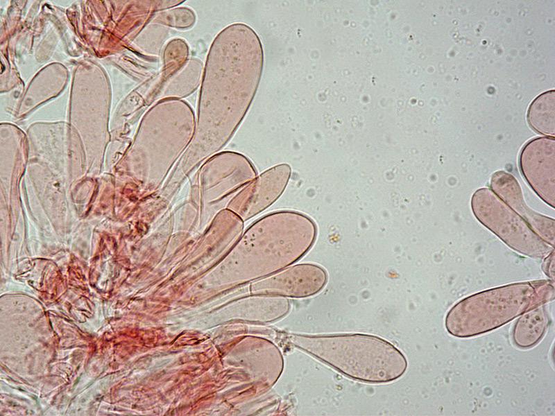 Entoloma-nigroviolaceum-26-Cuticola-RC-100x27-Cuticola-RC-400x.jpg