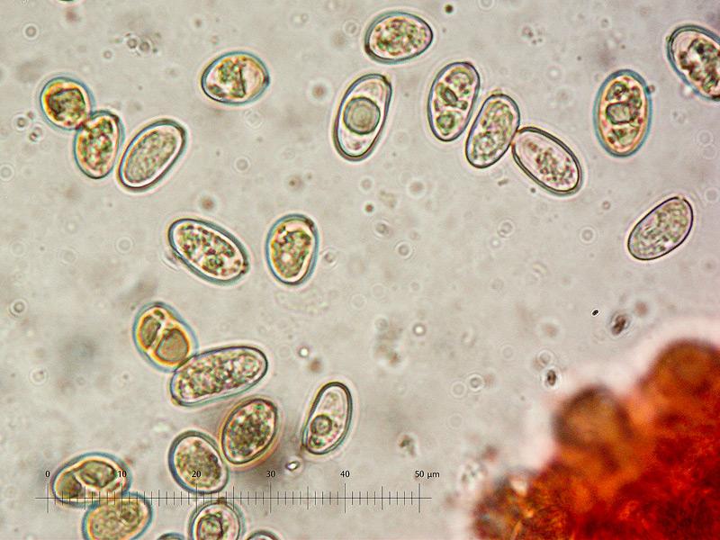 Inocybe-rimosa-27-TL-20161106-01-Spore-1000x-RC_m.jpg