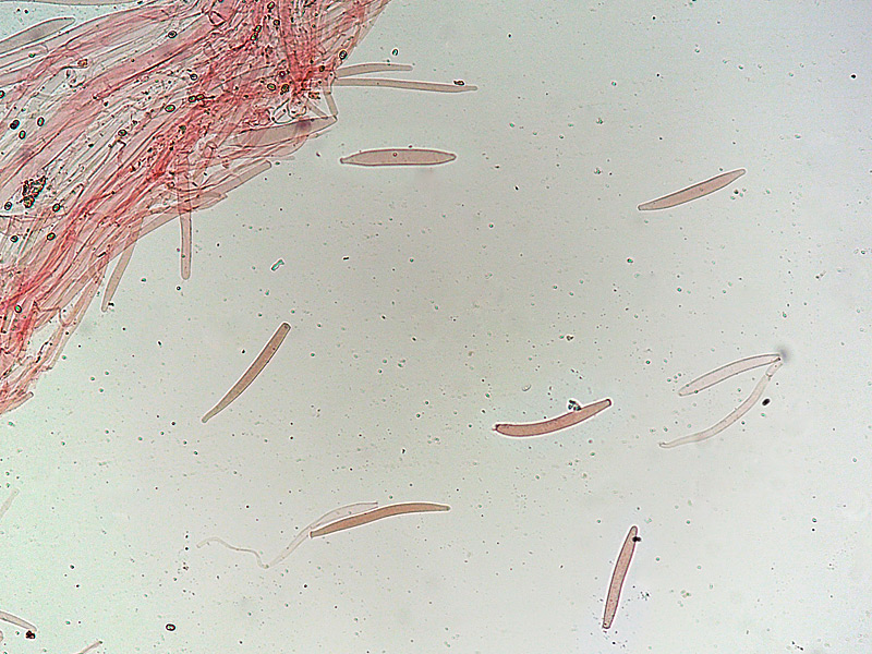 Pluteus-salicinus-24-9-Cuticola-terminali-100x.jpg