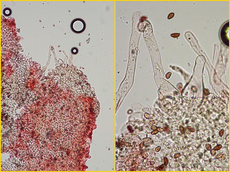 Coprinellus-disseminatus-09-10-Pileocistidi-100-400x.jpg