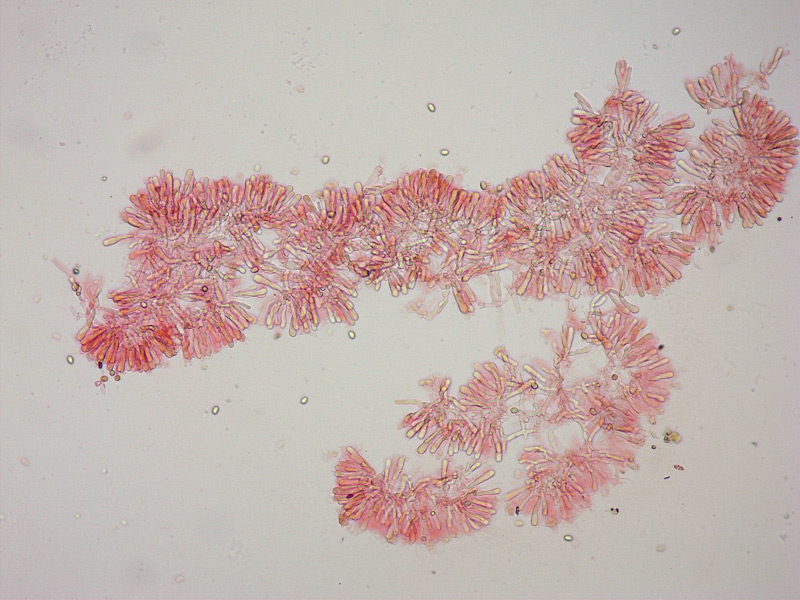 Faerberia-carbonaria-33-Basidi--oli-100x.jpg