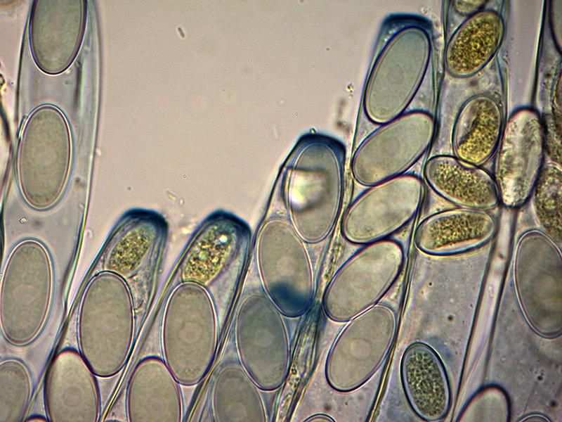 P-vesiculosa-aschi-53_1000x-.jpg.ba97b38582cce18237c7bdae1869617a.jpg