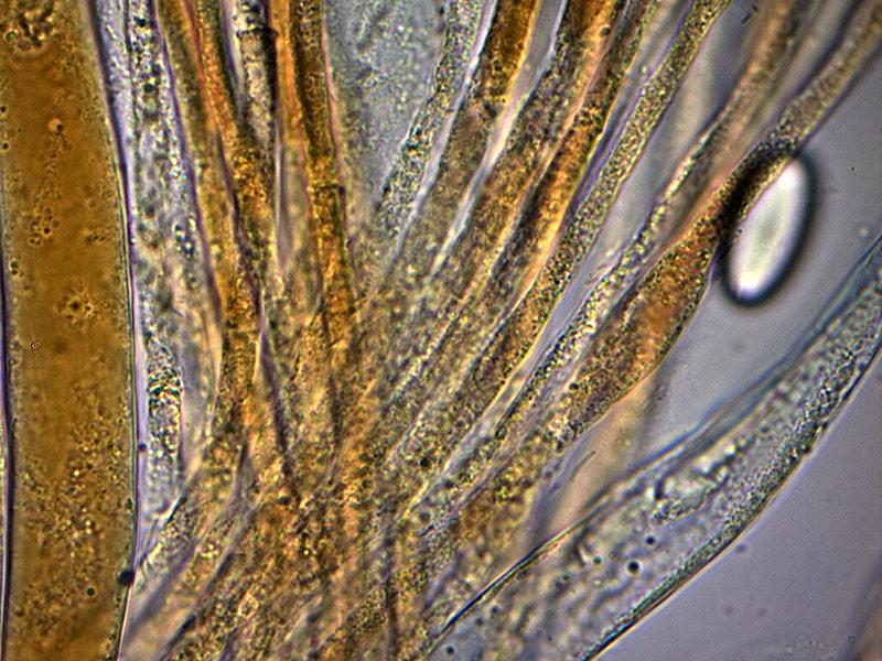 P-vesiculosa-parafisi-fort-44_1000x.jpg.6f270188a317f8c4e7b7924a296affe7.jpg