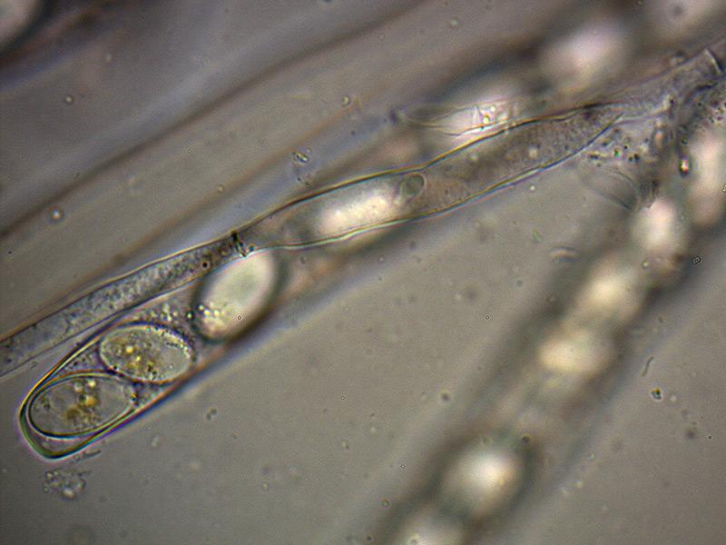 P-vesiculosa-parafisi-fort-50_1000x.jpg.e90ceed54340a3a5c397b1f1072d2d92.jpg