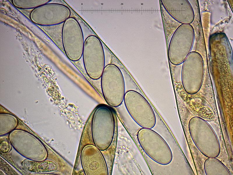P-vesiculosa-spore-48_1000x.jpg.76cfb4f9af9f85da20b503a0b4aa6117.jpg