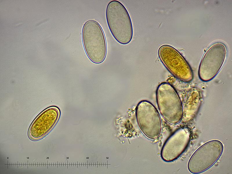 P-vesiculosa-spore-51_52_55_1000x.jpg.c61a8cc8190d08c45893811ed03ab581.jpg
