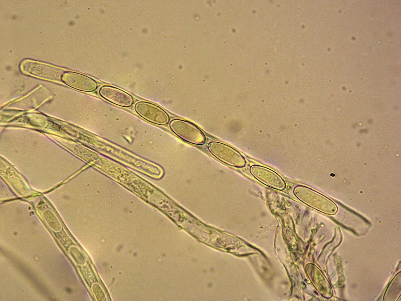 Sarcoscypha-coccinea-28-35-Spore-Aschi-Parafisi-400x-Melzer+Cloralio.jpg