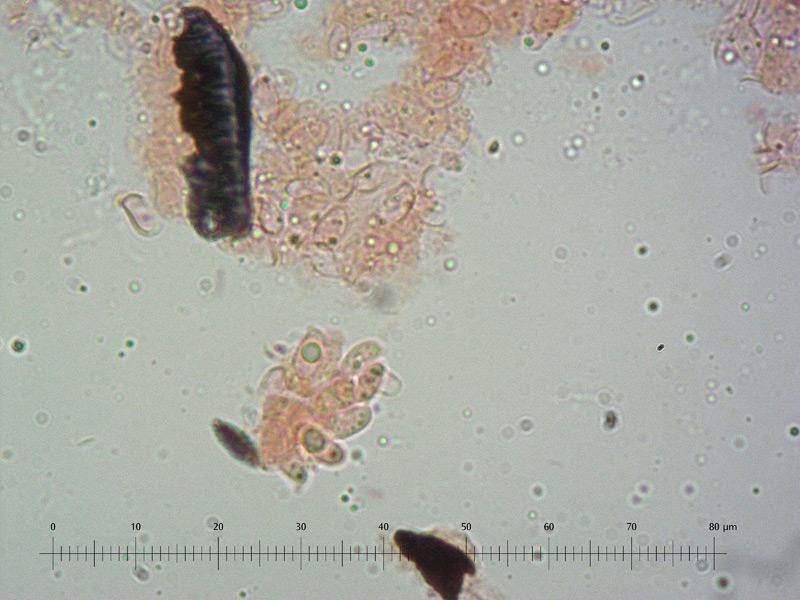 Clitocybe-cfr-diatreta-20-Spore-1000x-RC_u.jpg