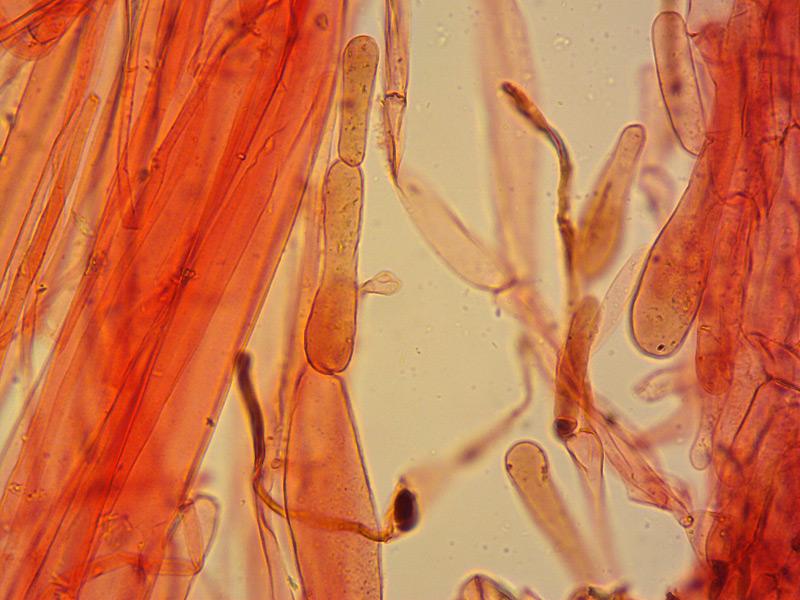 Entoloma-hirtipes-15-Cuticola-pigm-disc-400x.jpg