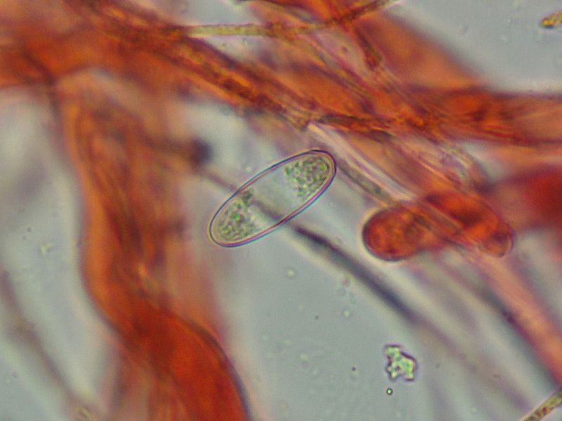 Sarcoscypha-coccinea-04-Spore-400x-RC.jpg
