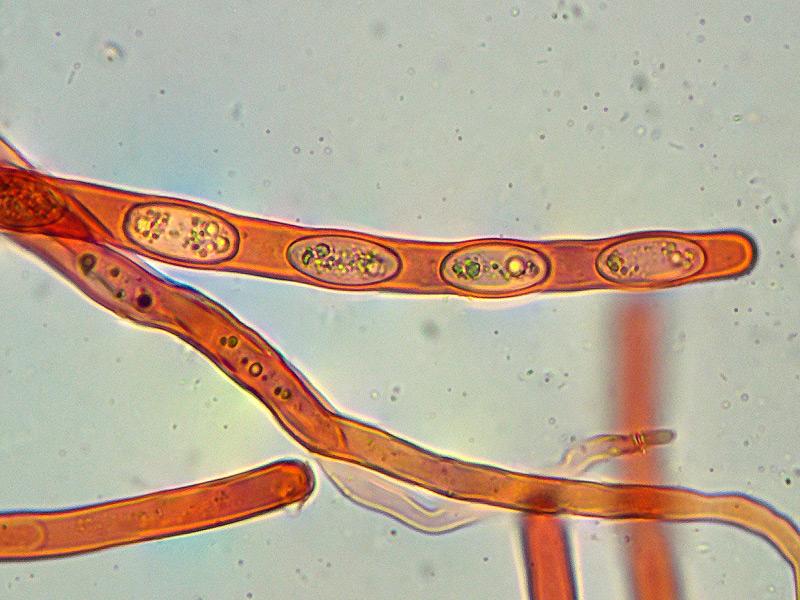 Sarcoscypha-coccinea-06-10-Spore-400x-RC.jpg