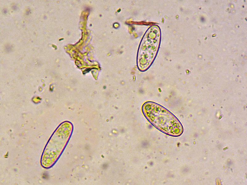 Sarcoscypha-coccinea-13-5-Spore-400x-RC.jpg