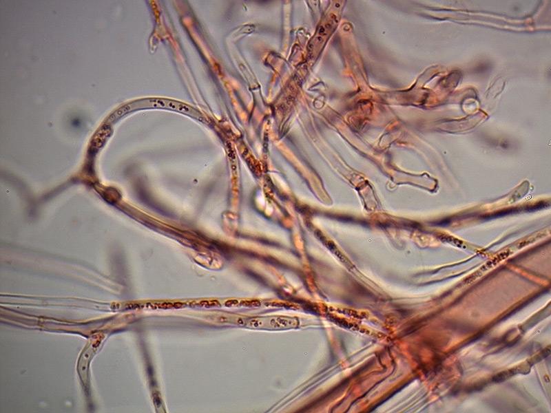 Sarcoscypha-coccinea-parafisi-29_1000x.jpg.171408b1f663c319b61b1dea8bb34139.jpg