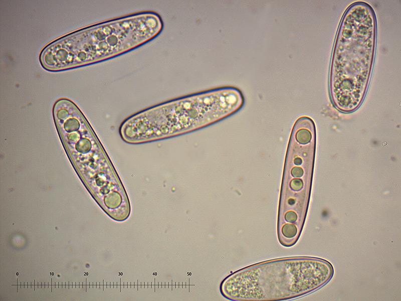 Sarcoscypha-coccinea-spore-54_1000x.jpg.4d45f3d3c33dbf72fe98b0bbb97fb62e.jpg
