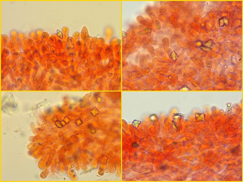 Melanoleuca-verrucipes-56-7-8-9-XX-ottaedrici-ife-lamelle-400x-RC.jpg