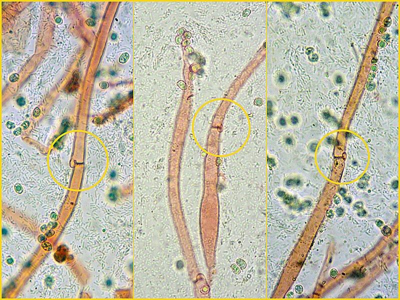 Pluteus-pouzarianus-17-9 GAF Cuticola 400x RC.jpg