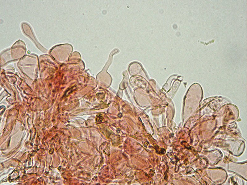 Lepiota lilacea 21 Pileipellis imeniderma 400x RC.jpg