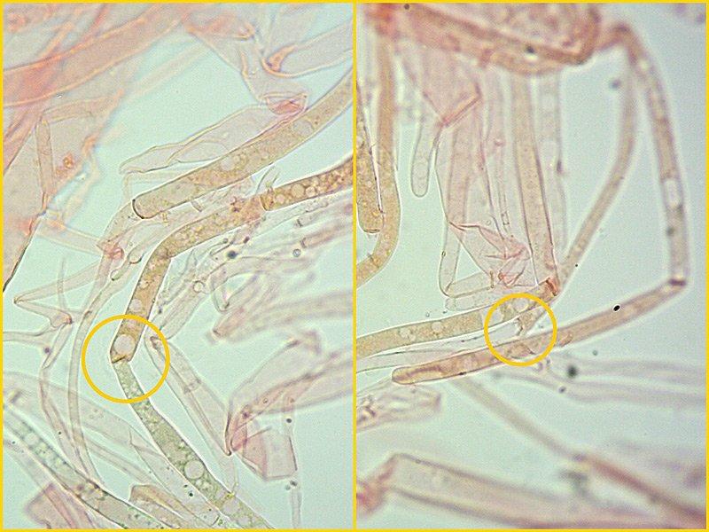 Pluteus pouzarianus B 27-9 Pileipellis 400x.jpg