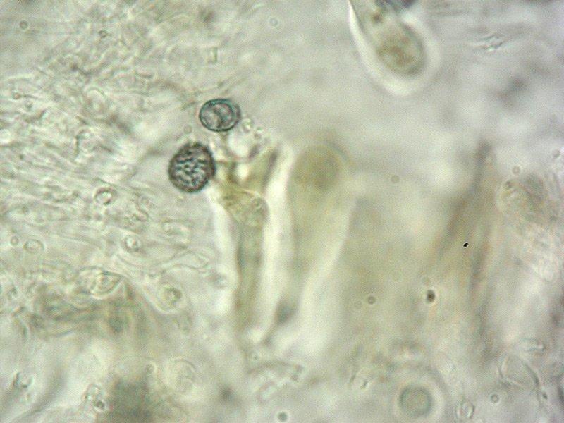 Russula rosea = Russula lepida 08 Spore 1000x Melzer.jpg