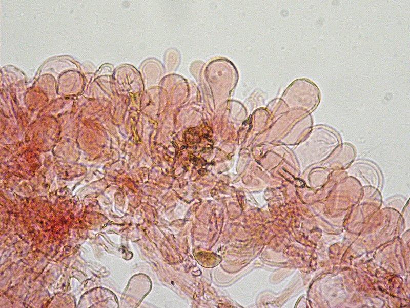 Lepiota lilacea 33 Pileipellis imeniderma 400x RC.jpg