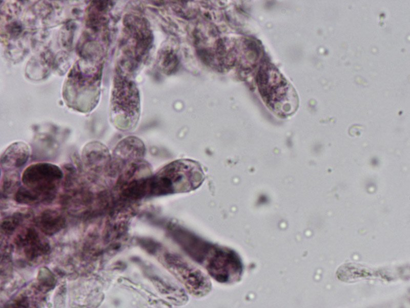 L-maleolens-basidi-siderofili-1_1000.jpg