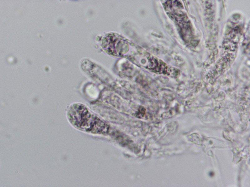L-maleolens-basidi-siderofili-3_1000.jpg