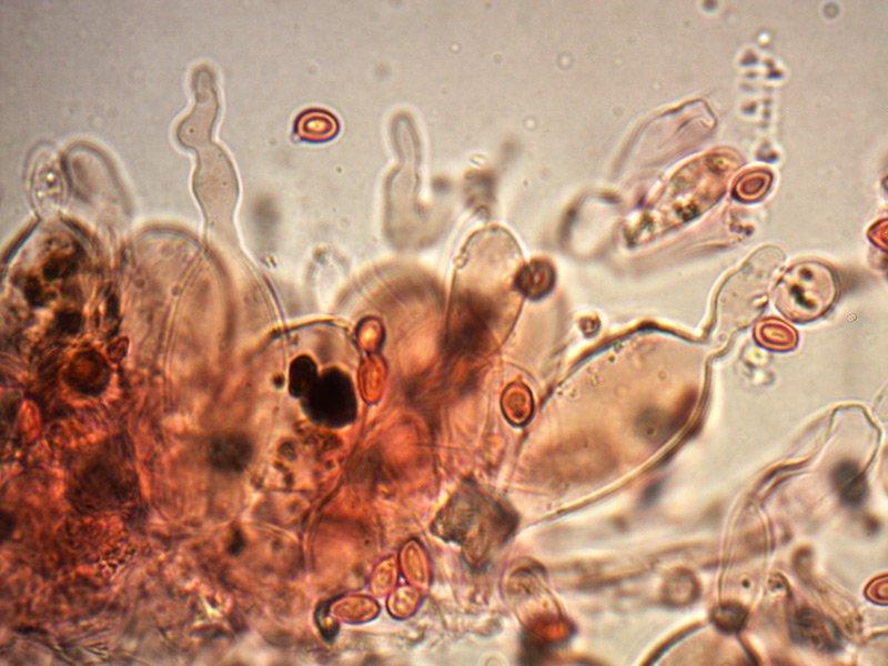 Leucoagaricus-badhamii-cheilo-22_1000x.jpg