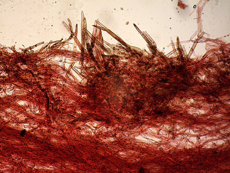 Leucoagaricus-badhamii-pileipellis-10_100x-.jpg