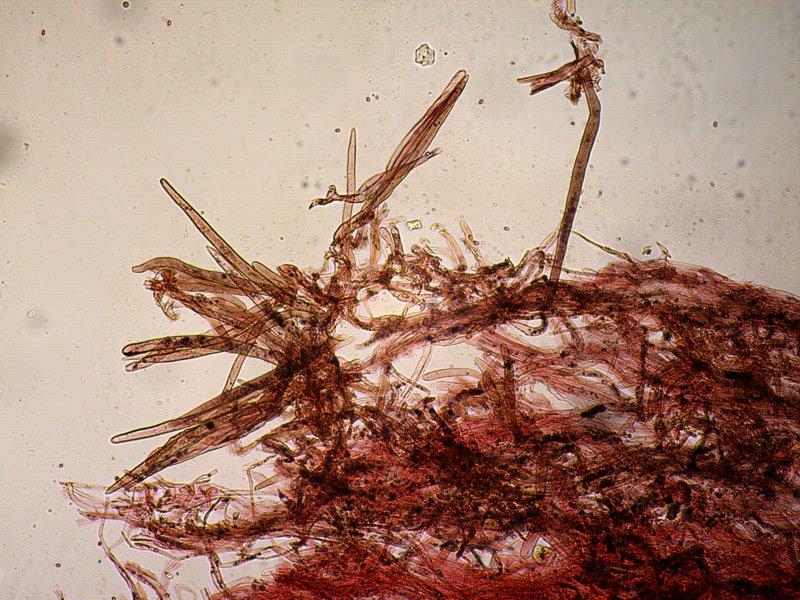 Leucoagaricus-badhamii-pileipellis-11_100x.jpg