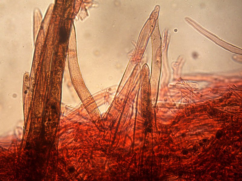 Leucoagaricus-badhamii-pileipellis-11_400x.jpg