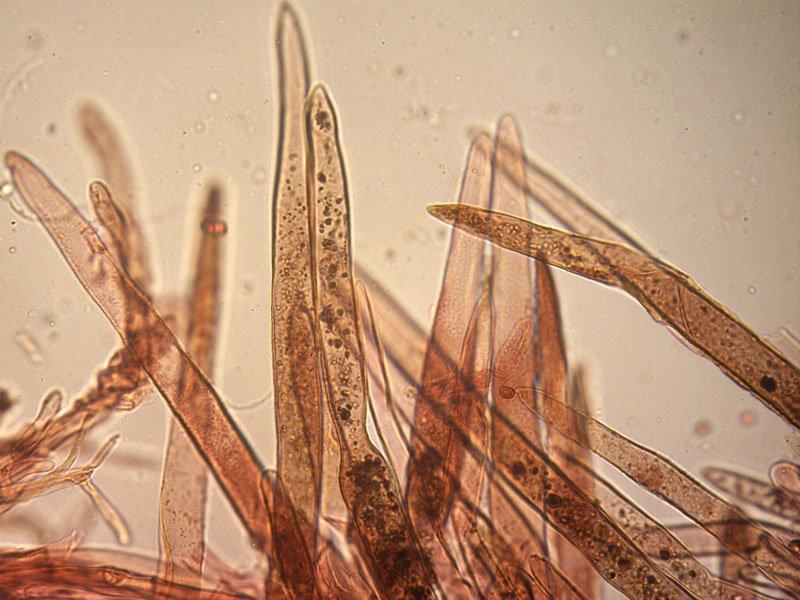 Leucoagaricus-badhamii-pileipellis-12_400x-.jpg