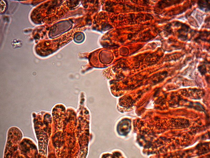 tricholoma-luridum-spore-5_1000.jpg