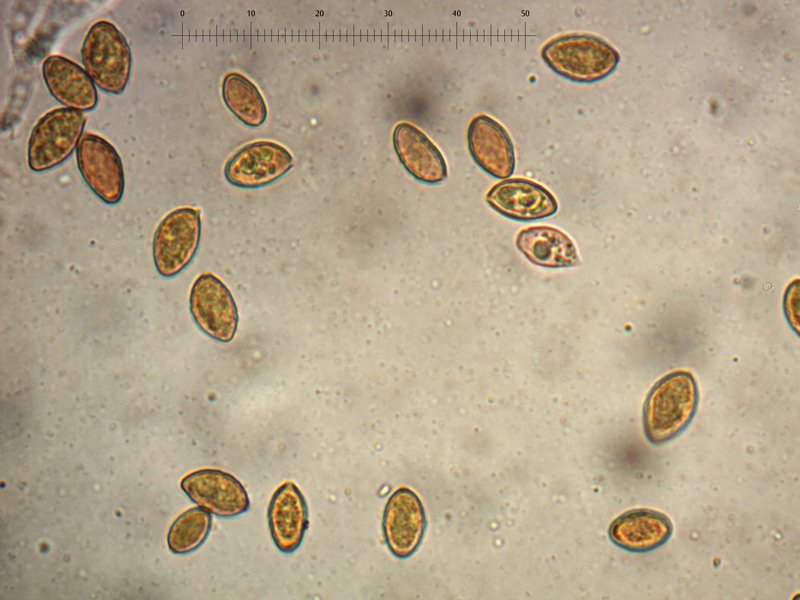 Cortinarius-sp-spore-06_1000.jpg